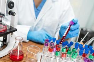 scienziato che tiene e tubo di analisi del focolaio di campioni microbici coronavirus o covid-19 infettivo in laboratorio per medico nel mondo. foto