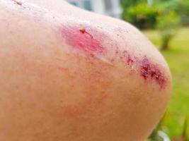 ferita sanguinante rossa fresca del primo piano sul gomito foto