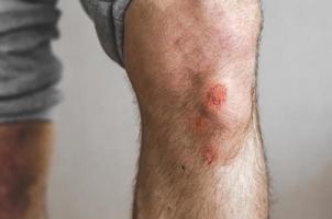 il giovane è rimasto ferito nello sport. foto