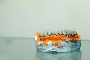 placca dentale in porcellana di zirconio nel negozio del dentista foto