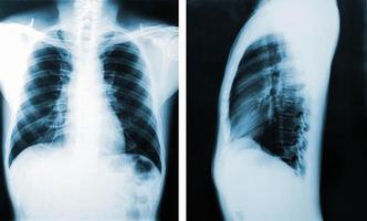immagine a raggi x, vista di uomini del torace per diagnosi medica. foto
