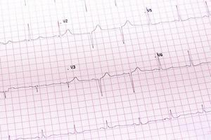 primo piano elettrocardiogramma