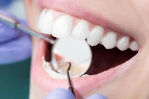 primo piano del dentista foto