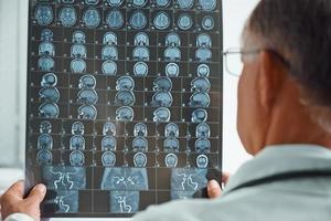 il medico più anziano irriconoscibile esamina l'immagine di MRI foto