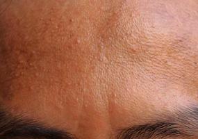 fronte dell'acne foto