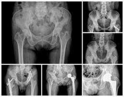 raggi X foto