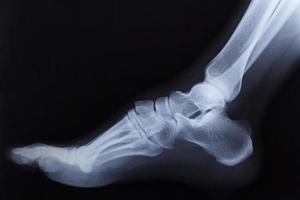 radiografia della caviglia del piede destro rotto, vista laterale foto