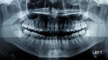 scansione a raggi x di pellicola umana foto