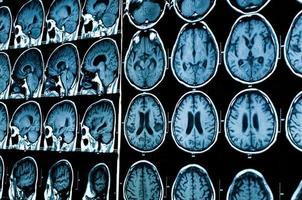 ricerca in medicina. mri scan del paziente. foto