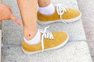 piedi di skateboard feriti foto