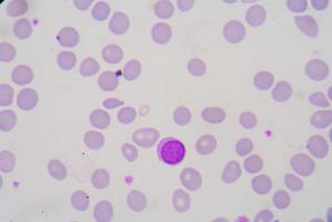 striscio di sangue foto