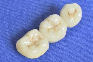 denti in primo piano foto