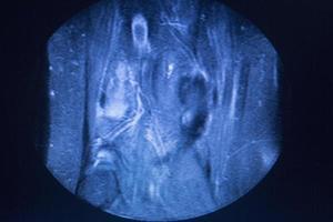 scansione medica per immagini a risonanza magnetica mri foto
