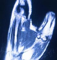 scansione carpale della mano di imaging a risonanza magnetica mri foto