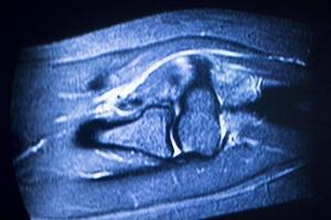 scansione del braccio a gomito per imaging a risonanza magnetica foto