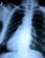 radiografia del torace foto