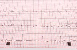 elettrocardiogramma sulla griglia rosa foto