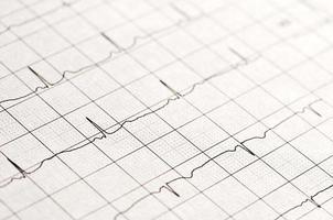 chiudere su un normale elettrocardiogramma foto