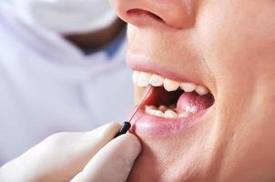 il dentista esamina i denti foto