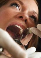 paziente dentale foto