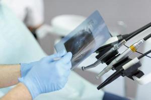 mano del dentista che tiene attrezzatura dentale foto