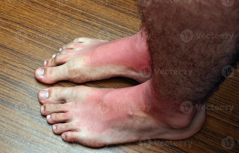 pés de queimadura solar foto