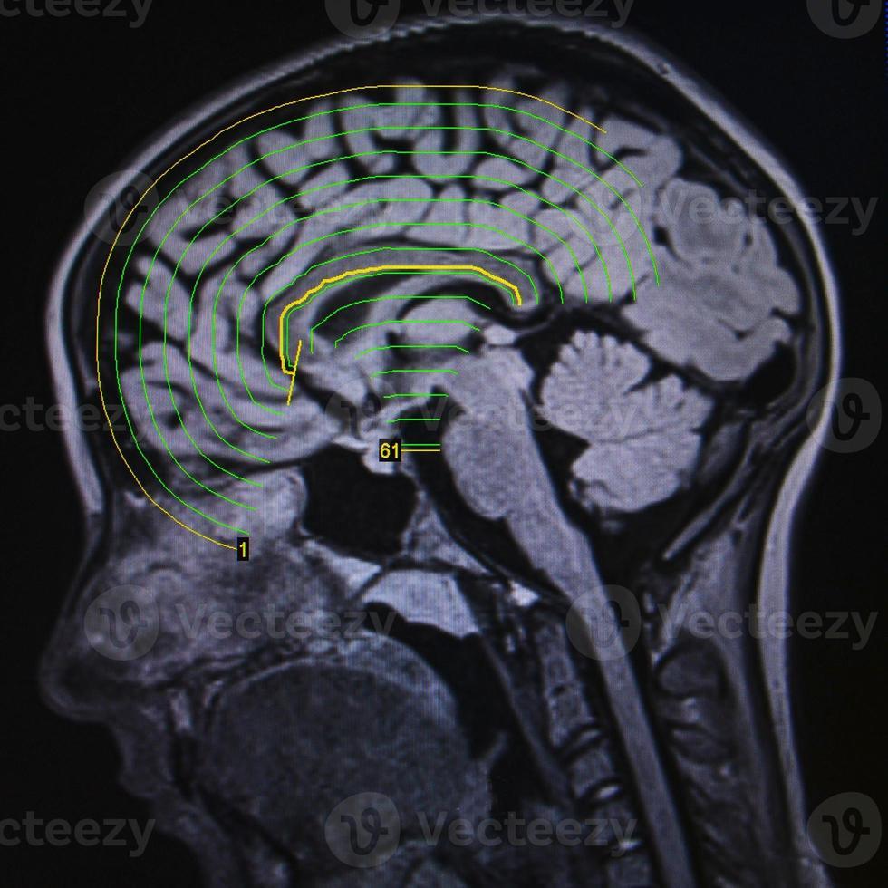 ressonância magnética do cérebro foto