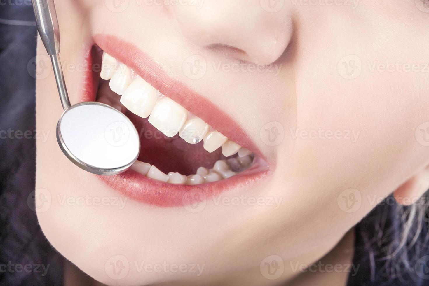 tratamento odontológico com espelho na boca da jovem mulher branca foto