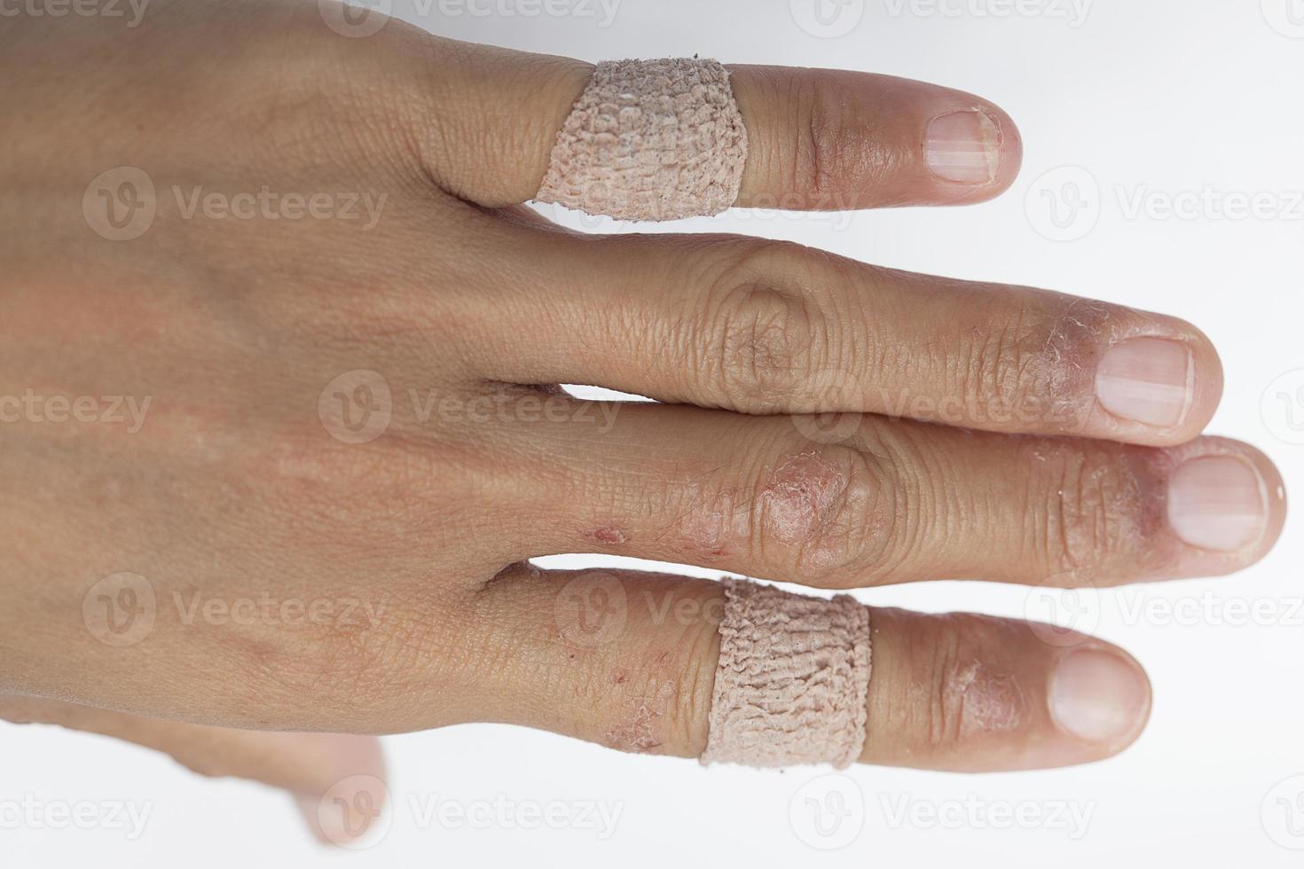 lesões alérgicas nas mulheres de gesso. foto