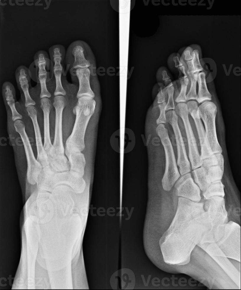 raio-x do pé foto