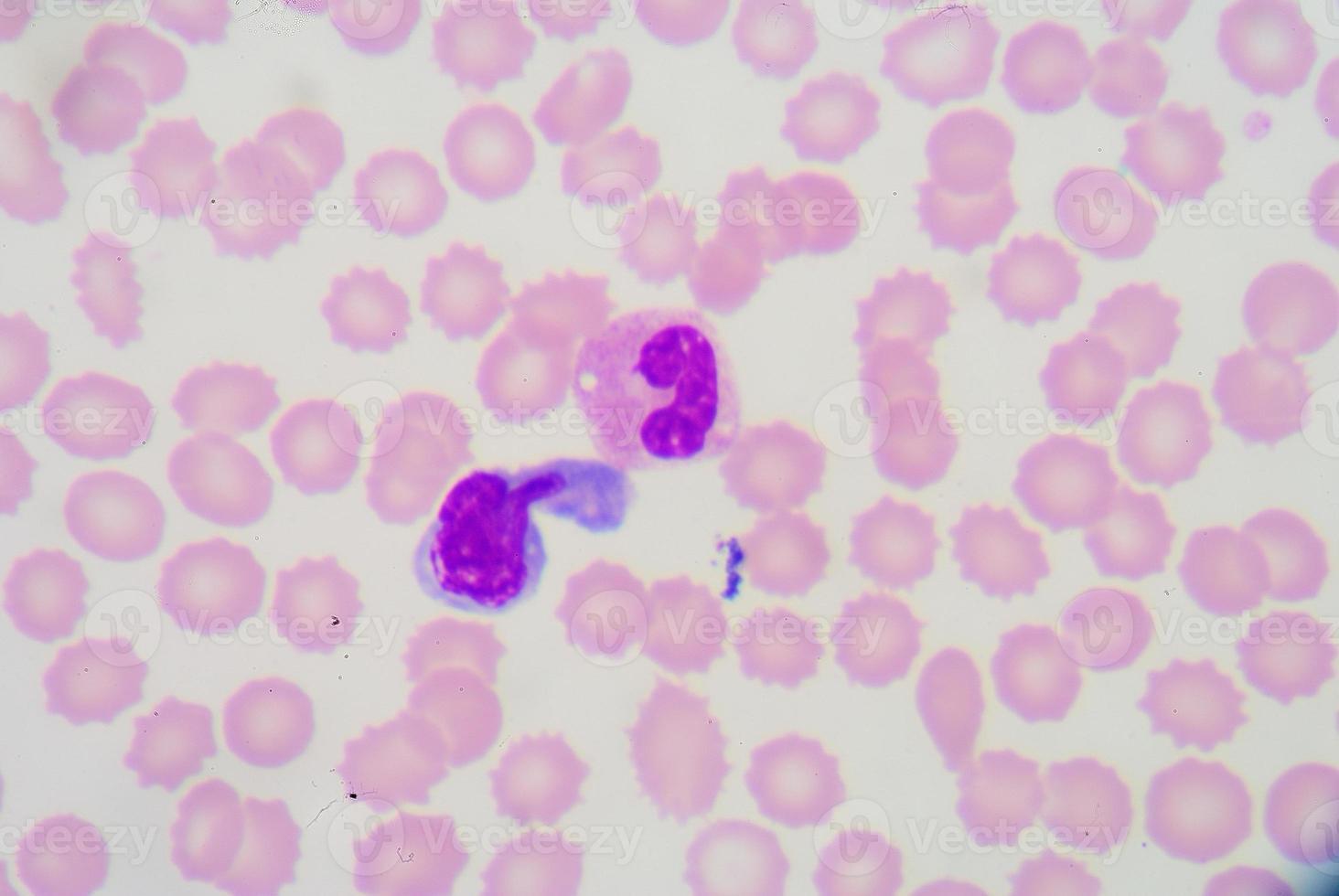 esfregaço de sangue foto