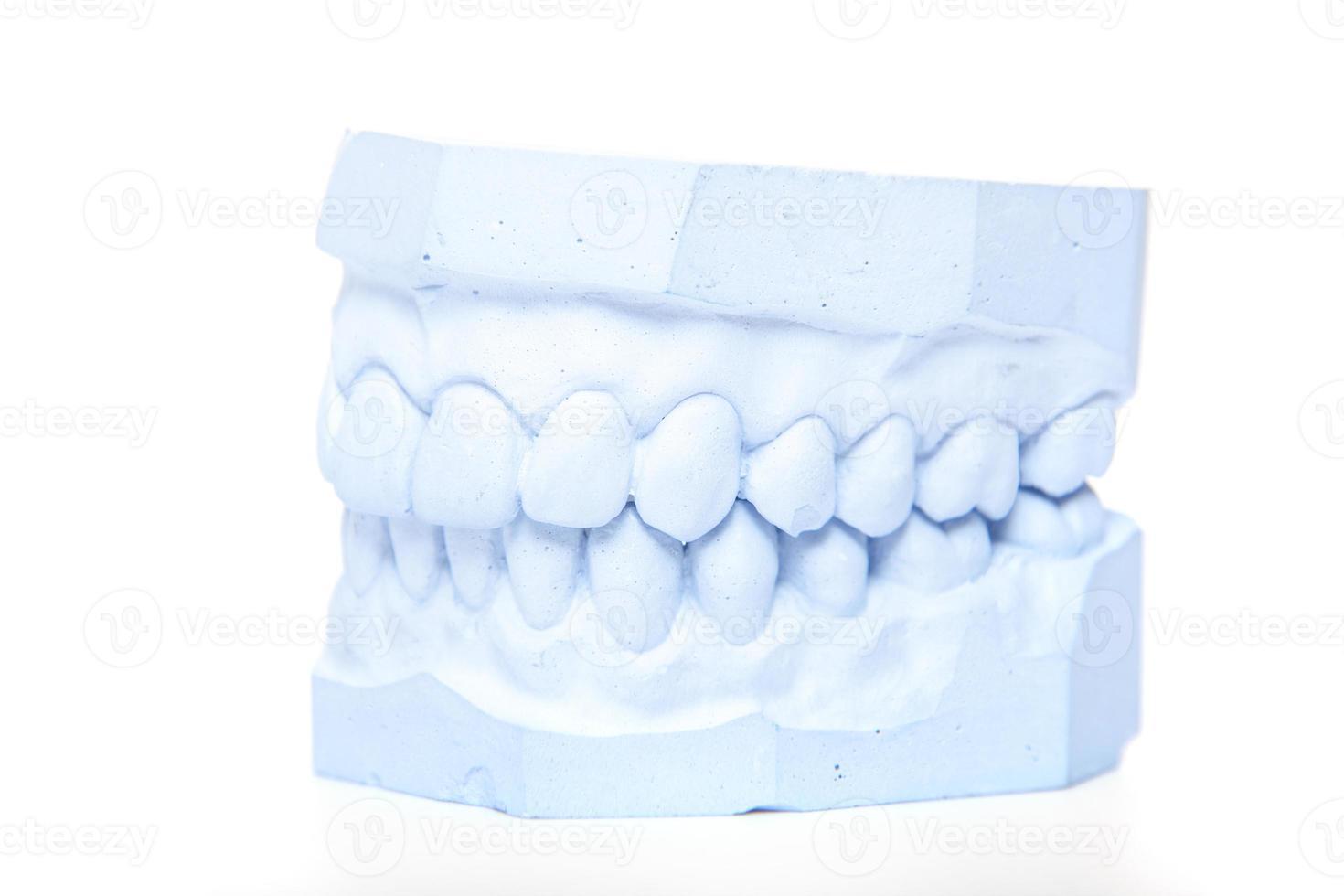 molde de gesso dos dentes foto