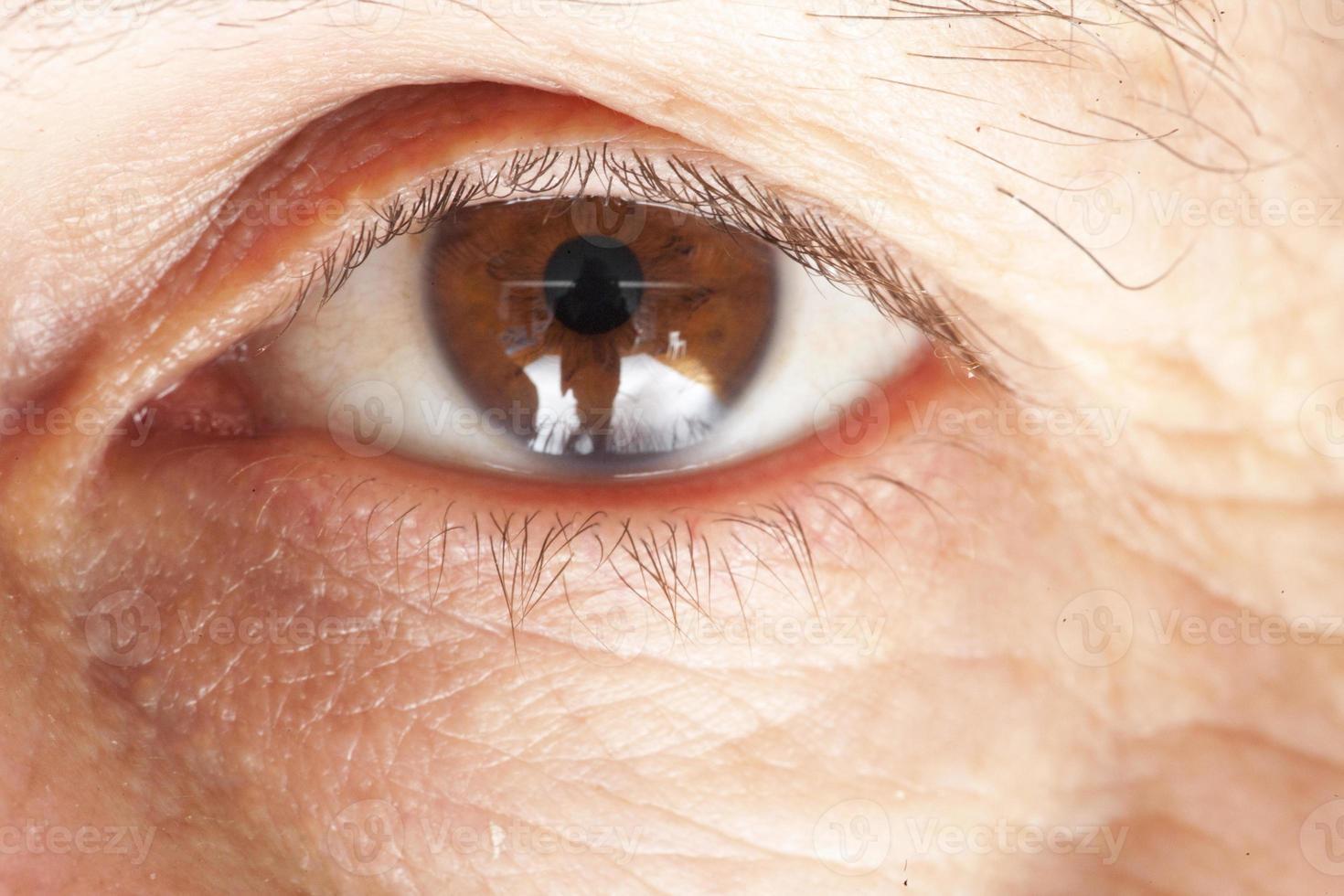 doença ocular foto