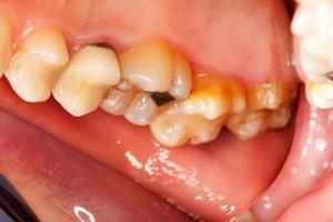 problemas dentários foto