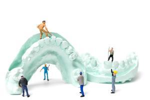 trabalhadores em miniatura obtendo dentes falsos e colocando-os em uma dentadura feita com gesso, conceito de laboratório de prótese dentária