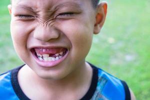 menino com dente faltando