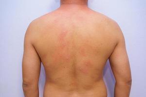 adulto do sexo masculino com alergia alimentar de início agudo com urticária em todo o corpo foto