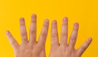 dedos com unhas roídas isoladas em um fundo amarelo foto
