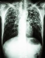 radiografia de tórax mostra infiltrado intersticial em ambos os pulmões devido a infecção por Mycobacterium tuberculosis tuberculose pulmonar foto