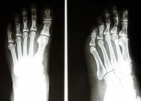o raio x do filme mostra osso normal do pé humano foto