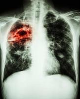radiografia de tórax mostra fibrose da cavidade e infiltrado intersticial no pulmão direito devido a infecção por Mycobacterium tuberculosis tuberculose pulmonar foto