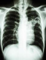 radiografia de tórax mostra infiltrado alveolar no pulmão médio esquerdo devido a infecção por Mycobacterium tuberculosis tuberculose pulmonar foto