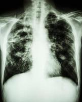 a radiografia do tórax mostra cavidade no pulmão direito, fibrose e infiltrado intersticial e irregular em ambos os pulmões devido a infecção por Mycobacterium tuberculosis tuberculose pulmonar foto
