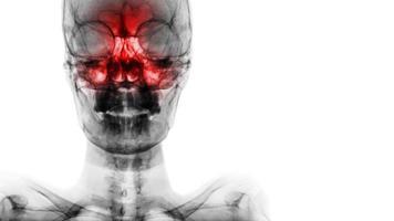 sinusite em seio frontal, etmóide, maxilar. filme raio-x do crânio e área em branco no lado direito foto