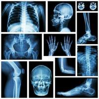 conjunto de parte múltipla de raio-x de humano. sistema esqueletico . foto