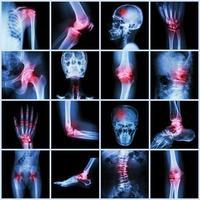 coleção de articulações humanas e artrite e derrame foto