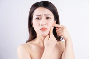 mulher asiática está desconfortável com acne no rosto foto