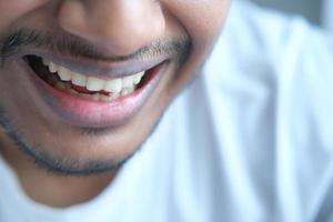 jovem homem aberto verificando os dentes foto