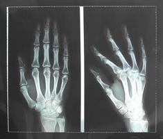 raio x da mão foto