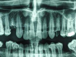 raio x de dentes humanos foto